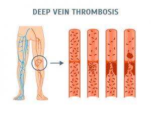 Beinvenenthrombose