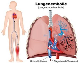 Lungenembolie erklärt