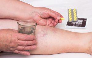 Welche Medikamente bei Thrombose helfen, können Sie hier erfahren.
